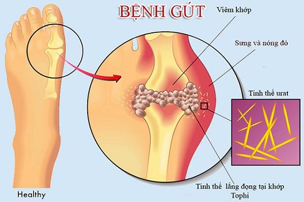 phac do dieu tri benh gout
