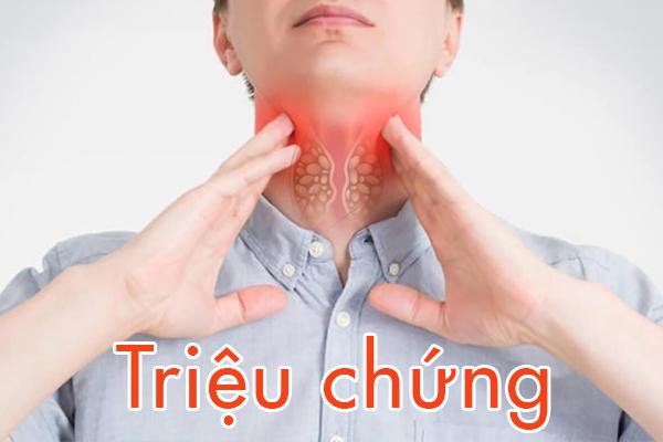 cac-trieu-chung-ung-thu-vom-hong