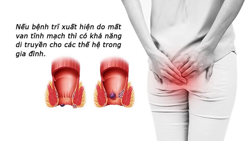 giai-dap-thac-mac-benh-tri-co-di-truyen-khong