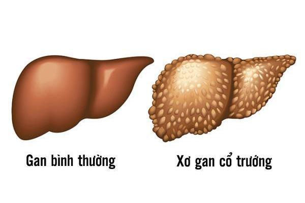 so-gan-co-truong-la-gi