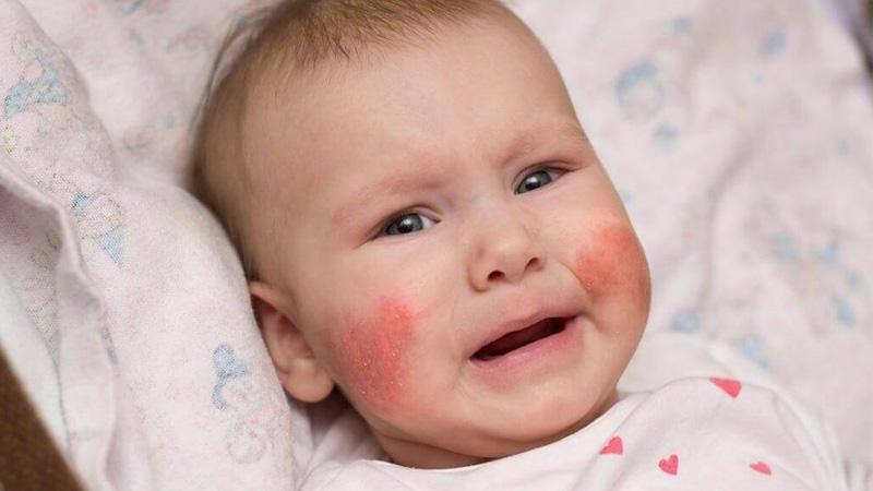 Trẻ thường bị chàm sữa ở hai bên má