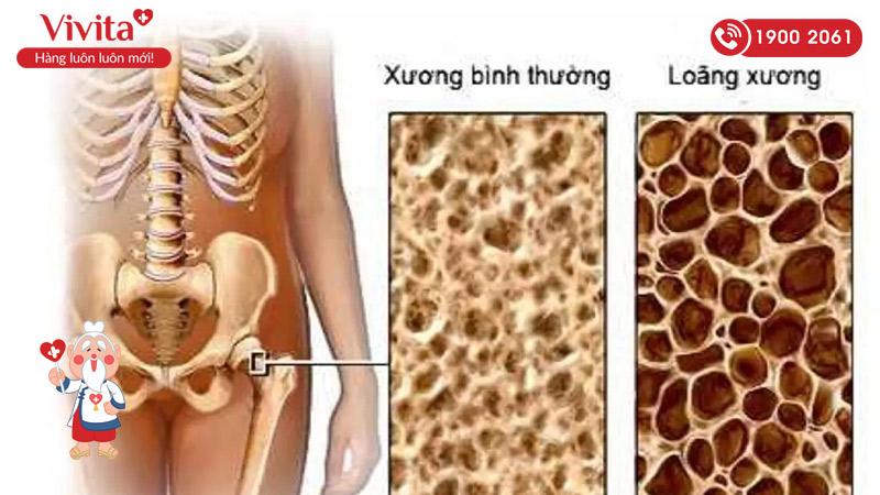 Loãng xương là bệnh lý xương khớp thường gặp ở người lớn tuổi
