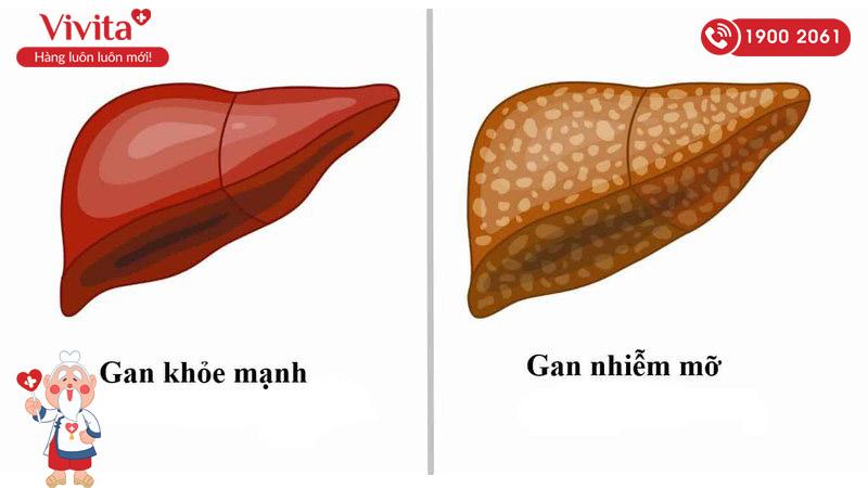 thuốc trị gan nhiễm mỡ