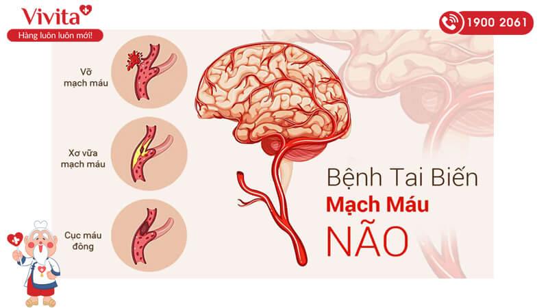 Triệu chứng của tai biến mạch máu não