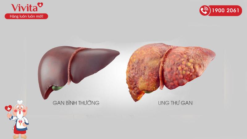 trị ung thư gan bằng đông y