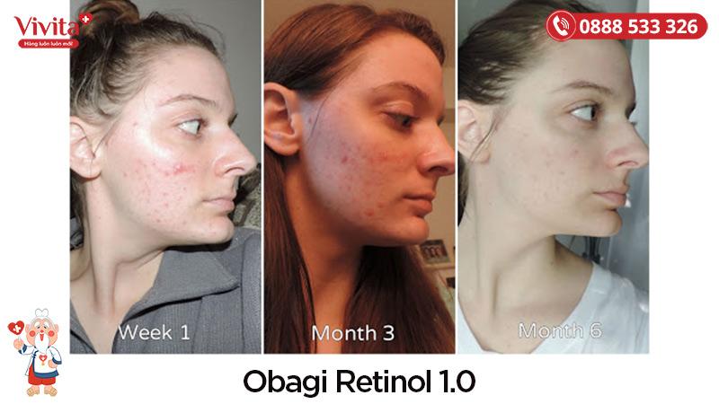 Trước và sau khi sử dụng Obagi Retinol 1.0