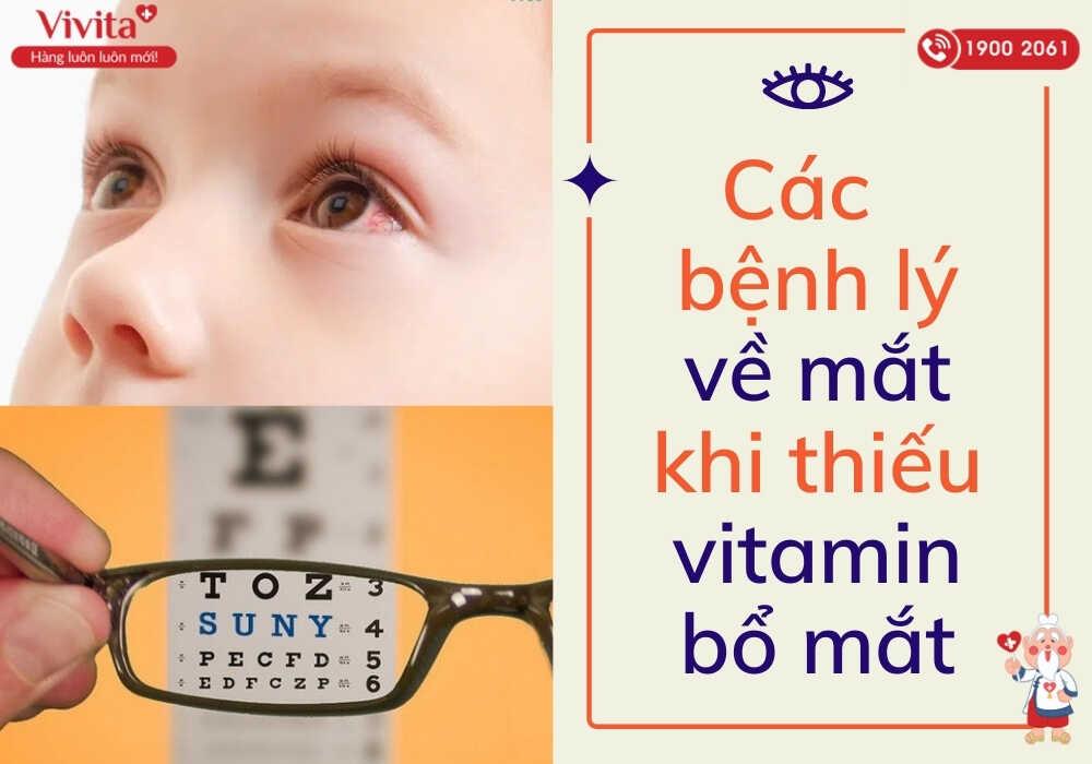 Tác hại khi thiếu vitamin bổ mắt