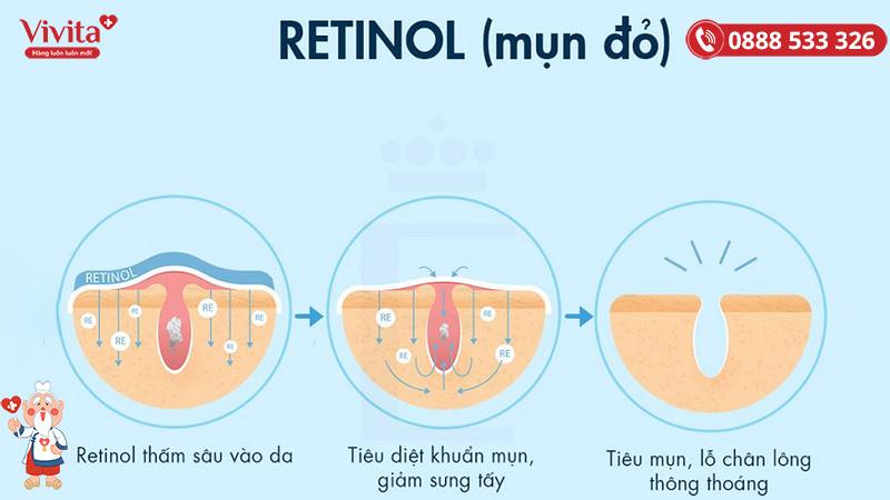 Retinol chống lão hoá và trị mụn hiệu quả