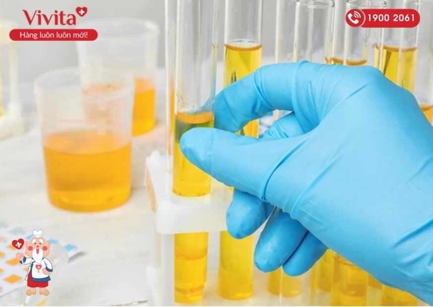 Thông qua lượng nước tiểu đã thu thập, các bác sĩ sẽ tiến hành phân tích và tìm kiếm các dấu hiệu nhiễm trùng.