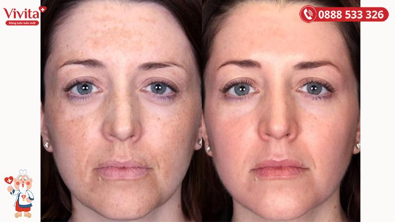 Retinol giúp cải thiện tàn nhang, dấu hiệu lão hoá