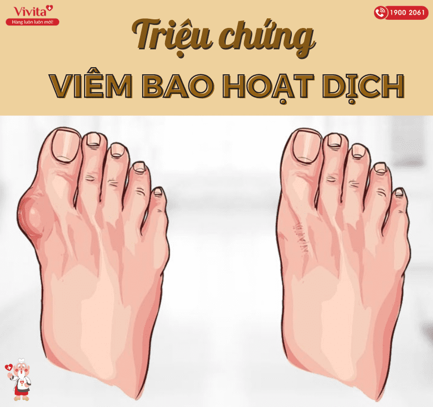 Viêm bao hoạt dịch ngón chân thường có các triệu chứng chủ yếu thể hiện qua cơn đau.