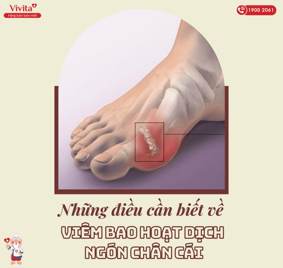 Tổng hợp các thông tin quan trọng về viêm bao hoạt dịch ngón chân cái.
